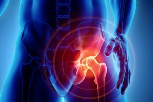 Parliamo di prevenzione dell'artrosi all'anca